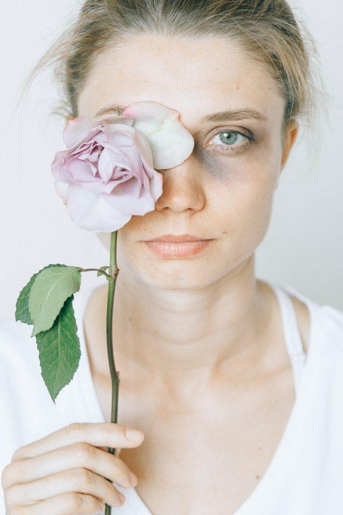 Donna con lividi e un fiore in mano, contro la violenza di genere